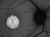 angiografrafia-fluorecencia-2