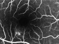 angiografrafia-hra-1