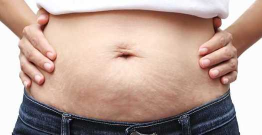 Stretch Marks Due To Weight Gain