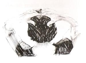 Glândula Pineal ou Epífise- Exercício 3