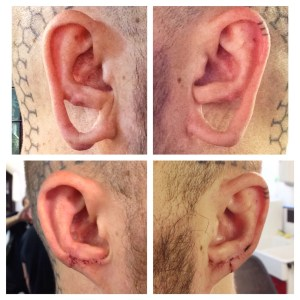 Lobe Repair Before and After