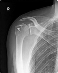 shoulder-239x300