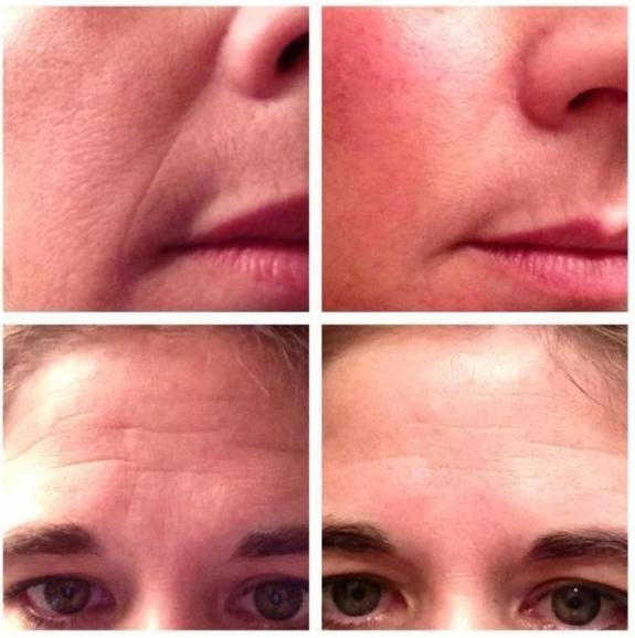 rodan and fields macro exfoliator results