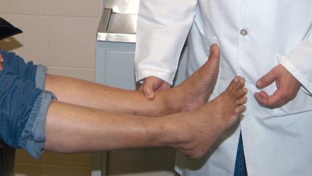 Imagen: Especialistas atienden a un paciente con pie diabético, 18 de octubre de 2019 (Imagen: Especial)