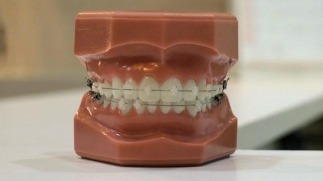 Tratamiento de brackets (Imagen: Unsplash)