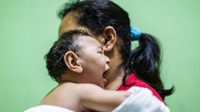 Foto de Sequelas da zika podem surgir em bebês após os 2 anos de idade