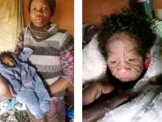20-year-old South African woman gives birth to baby with rare genetic condition, progeria