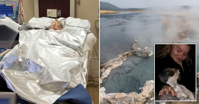 Woman slips into coma and suffers burn on 90 percent of her body after jumping into hot spring to save her dog