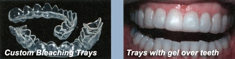 Custom Bleaching Gel Trays
