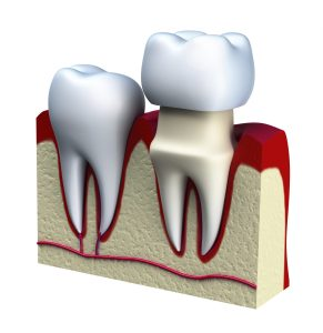 What Are the Differences Between Dental Bridges and Crowns?
