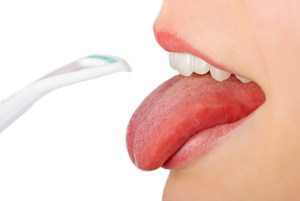 Dealing with Tongue Discoloration