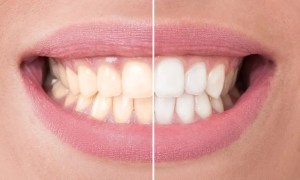 teeth stains being transformed with teeth whitening