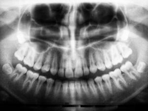 olney dental dental x-rays