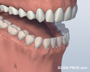 Mouth with Screw Attachment Denture Affixed onto Lower Jaw by Six Implants