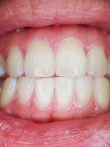 Laser Gum Surgery in Olney, MD