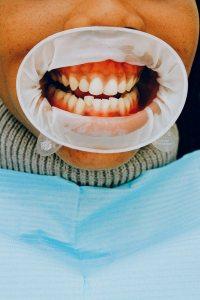 Dental X-rays Smile Designs of Olney