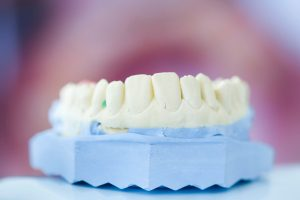 Dentures in Wheaton, MD Smile Designs of Olney