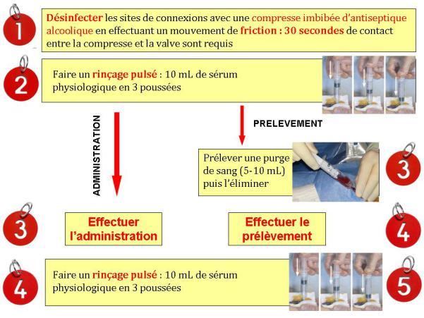 Bonnes Pratiques Dutilisation Des Valves De Perfusion Uni