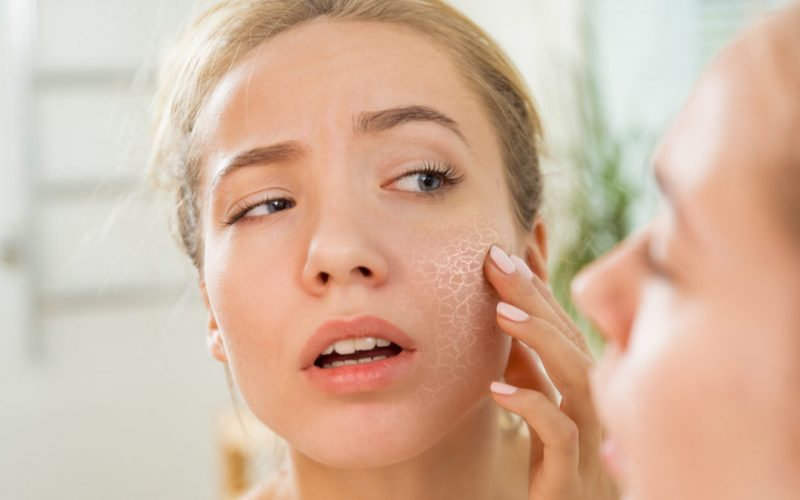 Glow your dry skin instantly