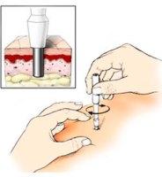 biopsia-de-piel