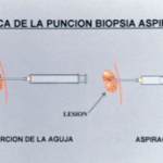 biopsia-por-aspiracion-cirujano-oncologo-cancun.png