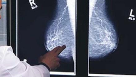 Investigadores de la Universidad Politécnica de Valencia pretenden mejorar las mamografías mediante inteligencia artificial