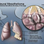 malignant pleural mesotheliomadiagram of the pleural mesotheliomia