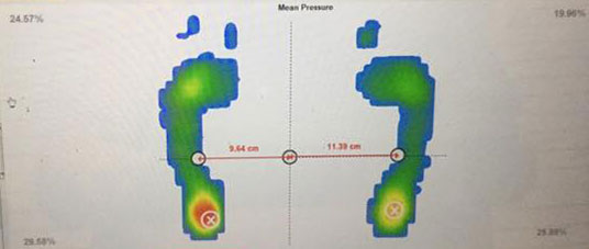 Client's after foot scan showing edge of right foot touching the floor