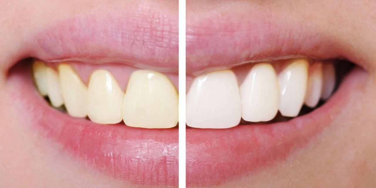 Ongekend 10 tips voor stralend witte tanden - One Hand in my Pocket OT-27