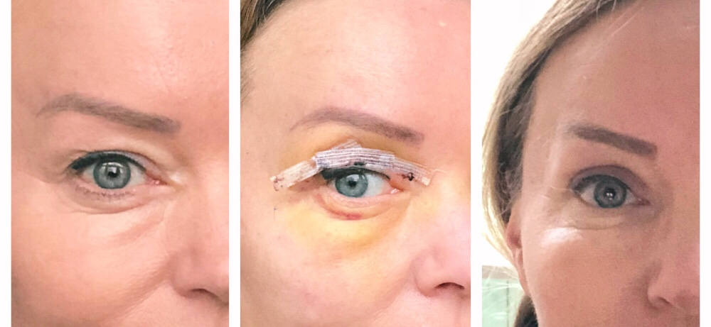 Stappenplan om je ooglidcorrectie vergoed te krijgen