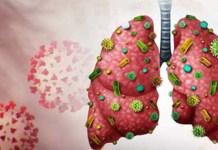corona Lungs - fusfus