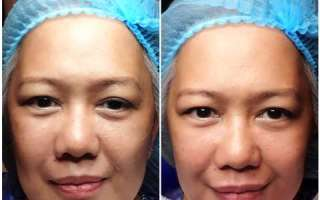Restylane OBT Hyaluronic Fillers Review