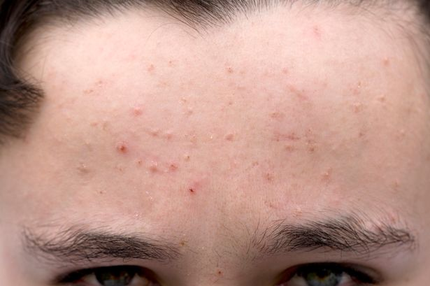 Acne pimple