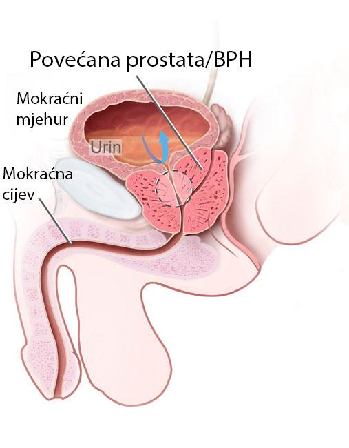 povecana_prostata