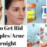 Treat Your Acne Permanently With These Simple Natural Remedies