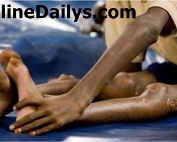 new polio cases Image
