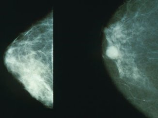 Mammogram from Wikipedia. The breast on the left is healthy, the one on the right is cancerous