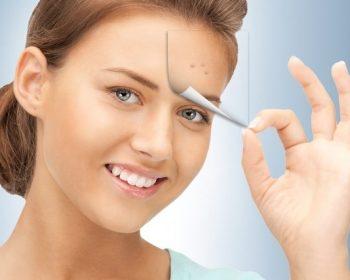 Cum sa scapi rapid de acnee