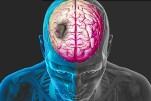 Accident cerebral ischemic – Cauze si tratament