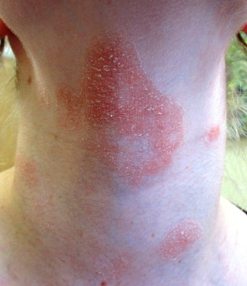 ... Contact Dermatitis- How to test your skin for allergies? #PatchTesting