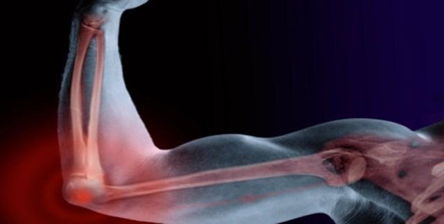 Image result for बहुत मजबूत हड्डियां