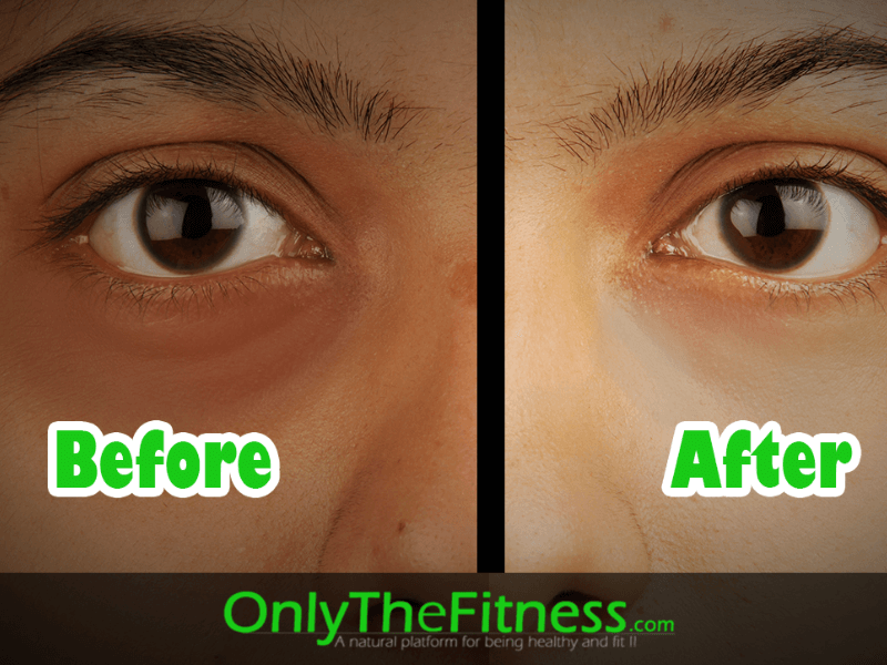 how to remove dark circles of eyes