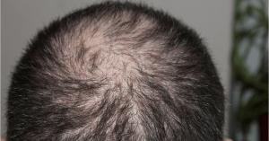 prevents balding