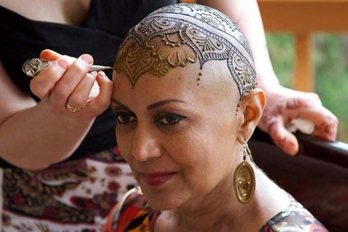 الحنا للتعامل مع مرض السرطان