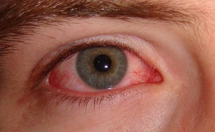 كيف-تتخلص-من-أحمرار-العينين