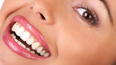 أسنان جميلة