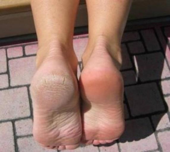 خشونة الأقدام