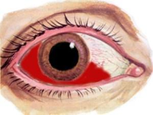 afbeelding subconjunctivale bloeding