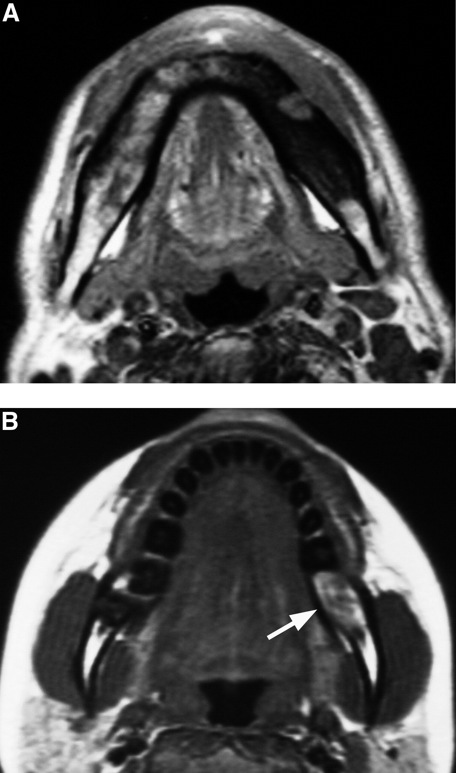 Mri Features Of Mandibular Osteomyelitis Practical Criteria Based On An Association With