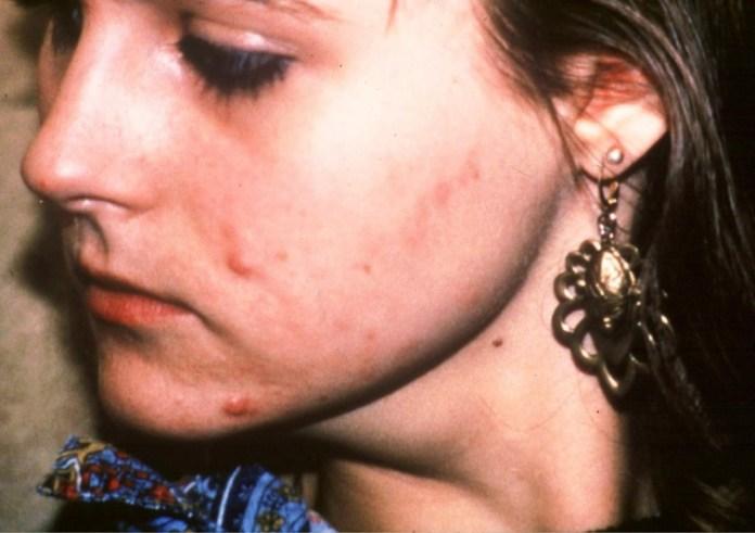 sintomas do lupus